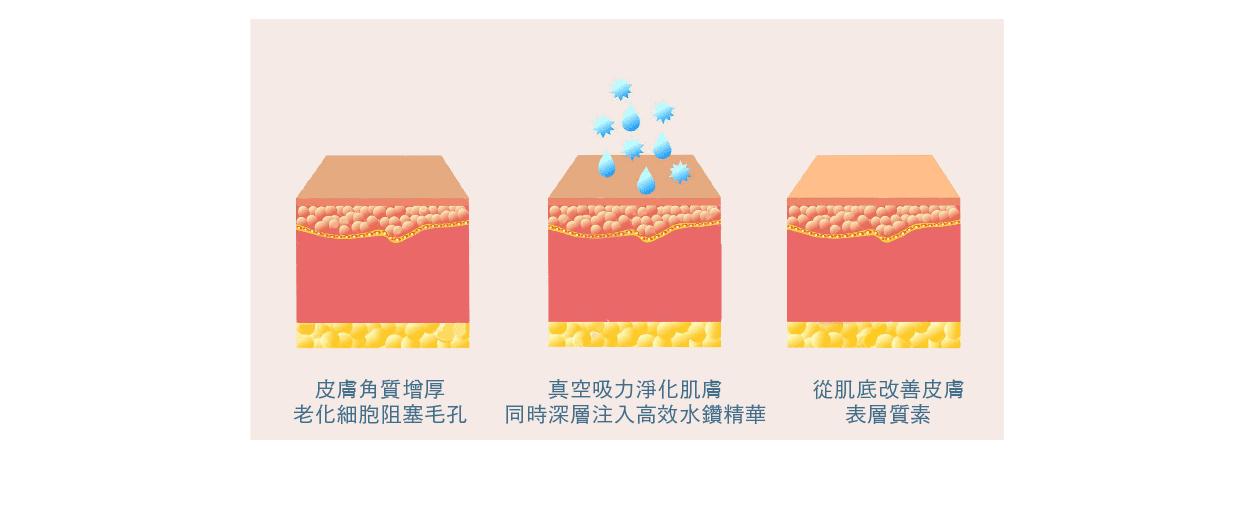 aquapeel 皮膚圖